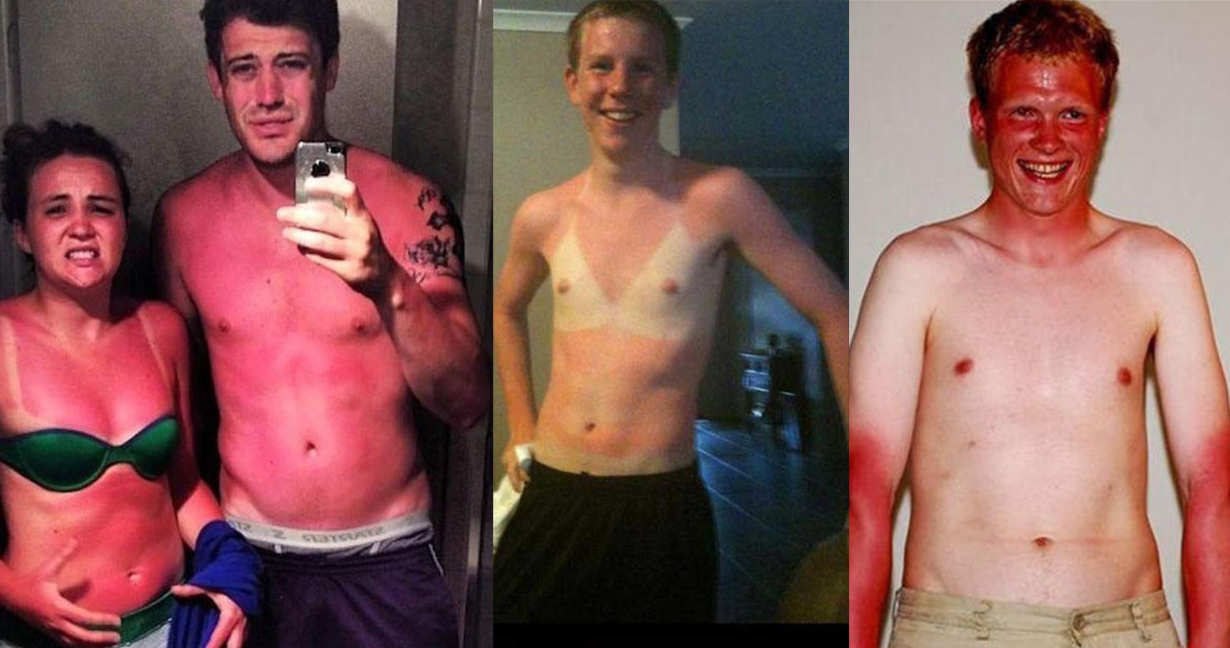 15 Struggles Only Those Who Sunburn Easily Will Understand