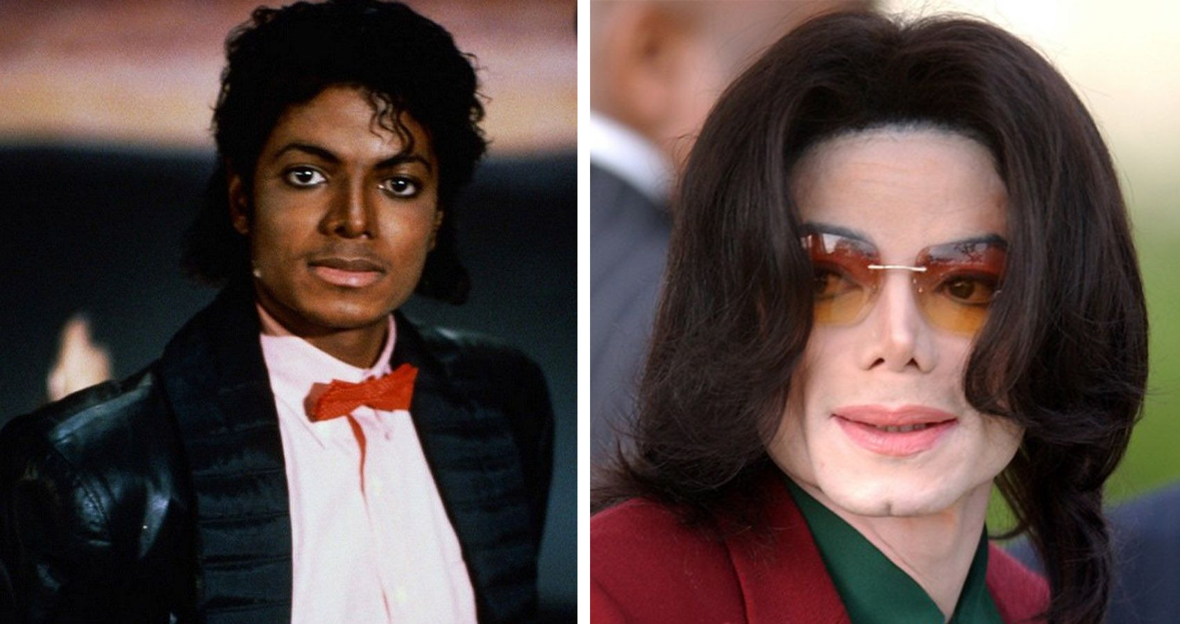The Truth Behind All Of Michael Jackson S Plastic Surgeries